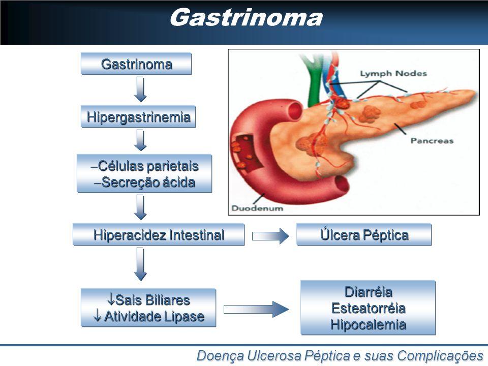 Gastrinoma Doença Ulcerosa Péptica e suas Complicações Gastrinoma Hipergastrinemia Células parietais Células parietais Secreção ácida Secreção ácida H