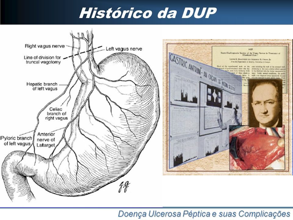 Histórico da DUP 1814: Bordie VT experimental 1910: Pavlov VT experimental com descrição da fase cefálica da secreção gástrica. 1922: Latarjet 1° desc