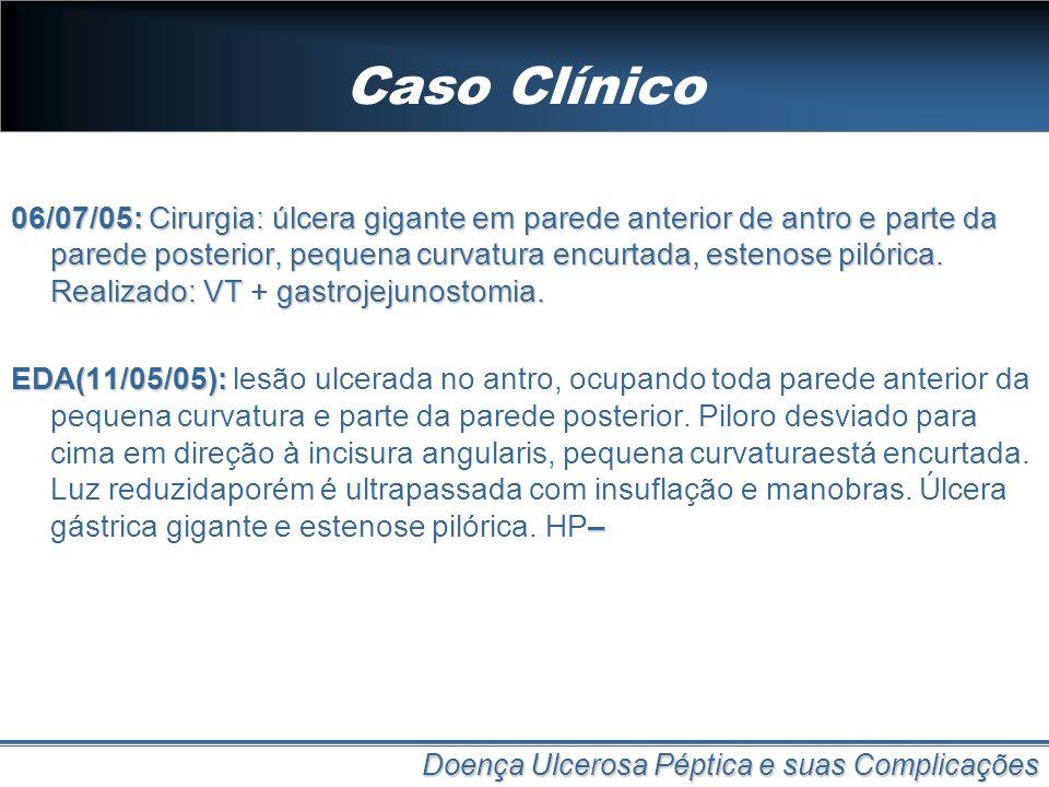 Caso Clínico 06/07/05: Cirurgia: úlcera gigante em parede anterior de antro e parte da parede posterior, pequena curvatura encurtada, estenose pilóric