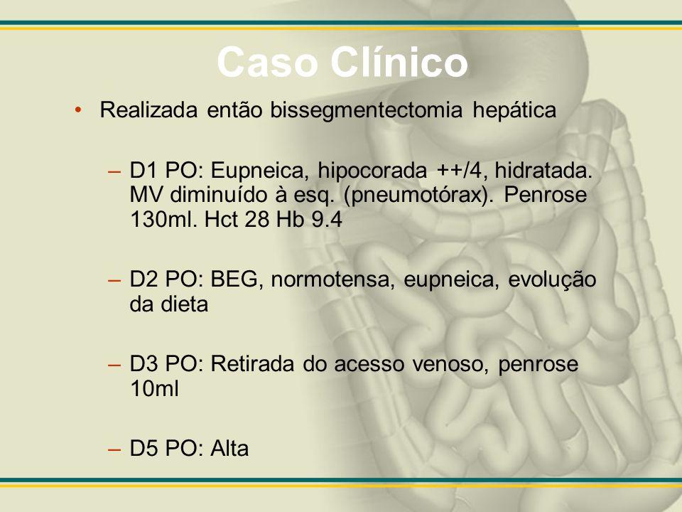 Caso Clínico Realizada então bissegmentectomia hepática –D1 PO: Eupneica, hipocorada ++/4, hidratada. MV diminuído à esq. (pneumotórax). Penrose 130ml