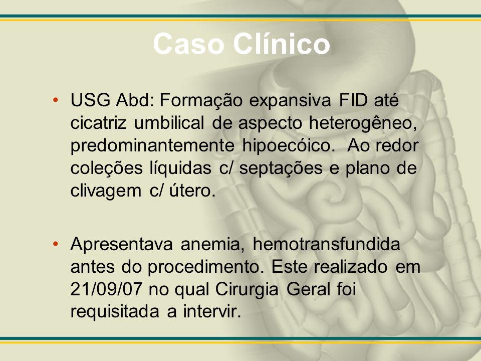 Caso Clínico USG Abd: Formação expansiva FID até cicatriz umbilical de aspecto heterogêneo, predominantemente hipoecóico. Ao redor coleções líquidas c