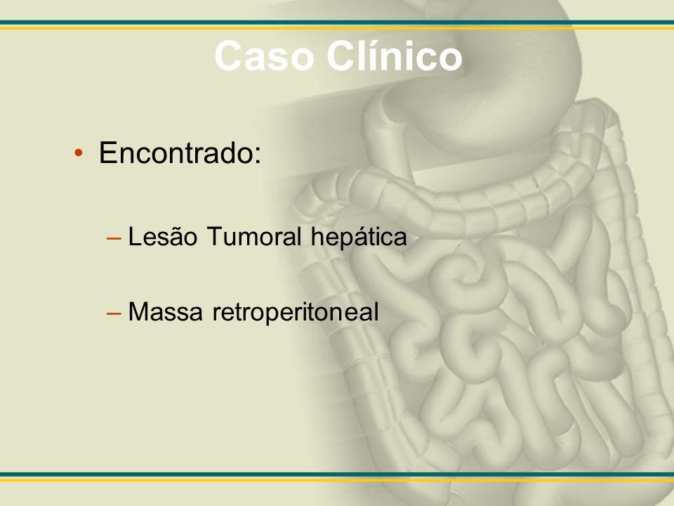 Caso Clínico Encontrado: –Lesão Tumoral hepática –Massa retroperitoneal