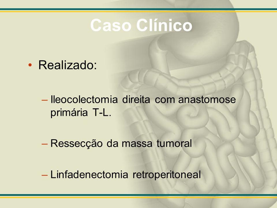 Caso Clínico Realizada laparotomia em 24/10/08 Massa pélvica englobando junção retossigmóide, alça de jejuno aderida em 3 pontos e massa tumoral aderida aos vasos mesentéricos superiores.