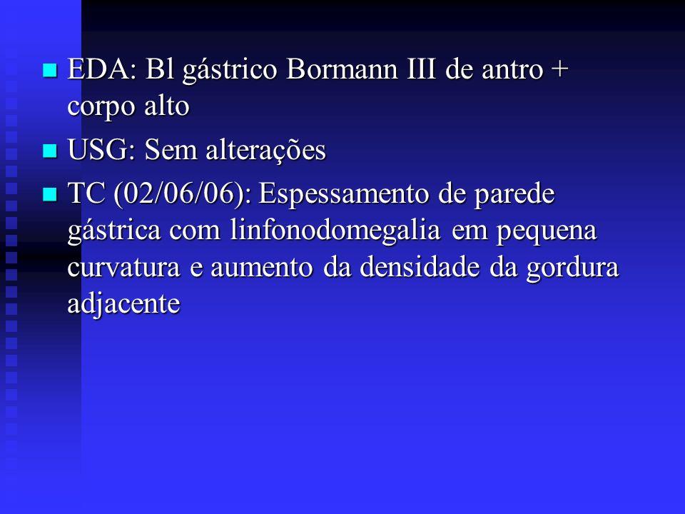 EDA: Bl gástrico Bormann III de antro + corpo alto EDA: Bl gástrico Bormann III de antro + corpo alto USG: Sem alterações USG: Sem alterações TC (02/0