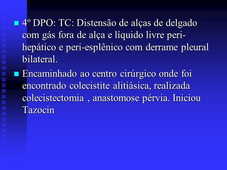 4º DPO: TC: Distensão de alças de delgado com gás fora de alça e líquido livre peri- hepático e peri-esplênico com derrame pleural bilateral. 4º DPO: