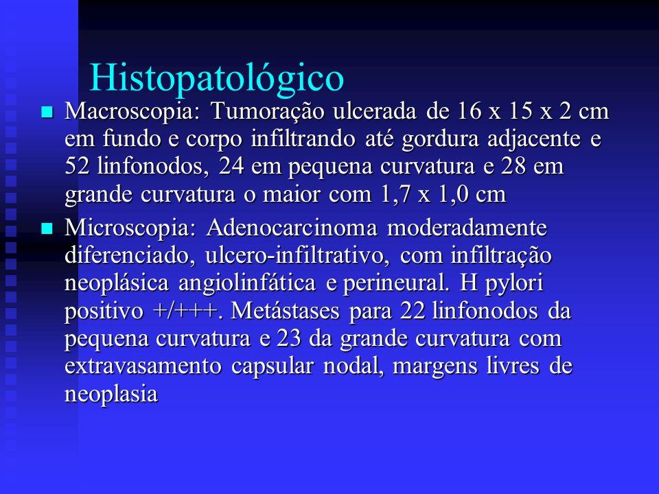 Histopatológico Macroscopia: Tumoração ulcerada de 16 x 15 x 2 cm em fundo e corpo infiltrando até gordura adjacente e 52 linfonodos, 24 em pequena cu