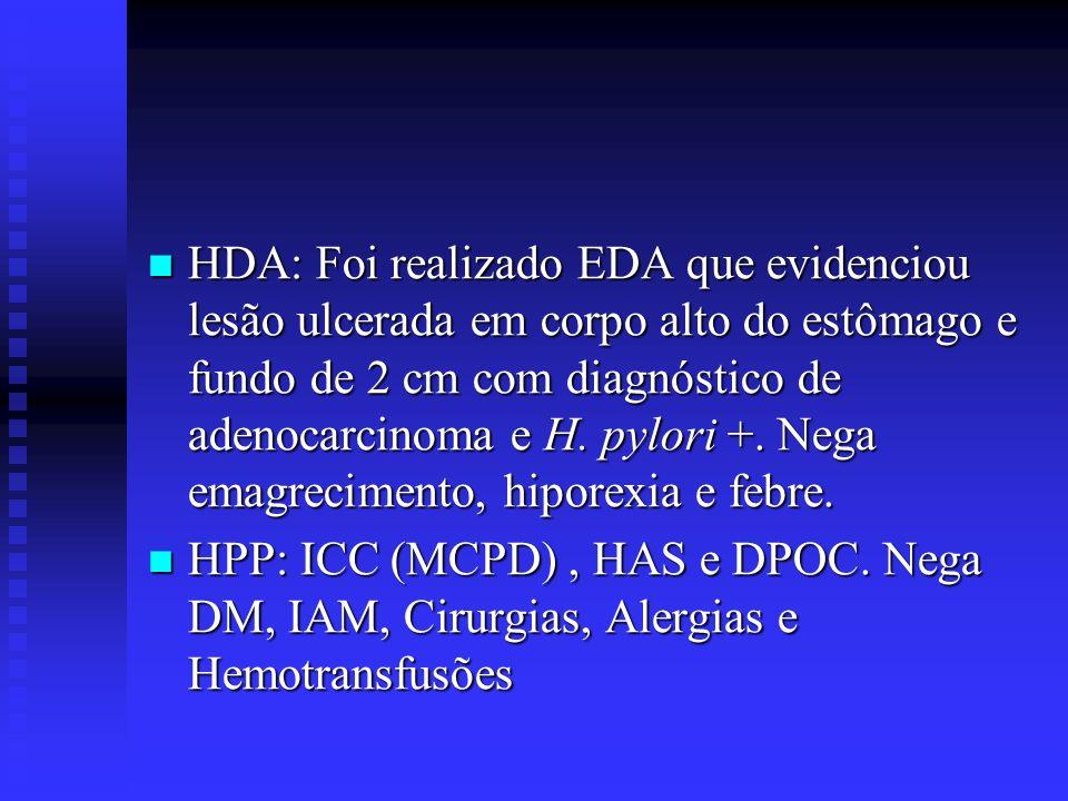 HDA: Foi realizado EDA que evidenciou lesão ulcerada em corpo alto do estômago e fundo de 2 cm com diagnóstico de adenocarcinoma e H. pylori +. Nega e