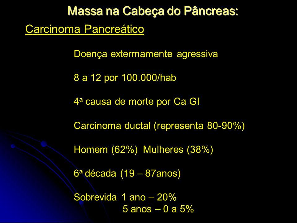 Massa na Cabeça do Pâncreas: Carcinoma Pancreático Doença extermamente agressiva 8 a 12 por 100.000/hab 4 a causa de morte por Ca GI Carcinoma ductal