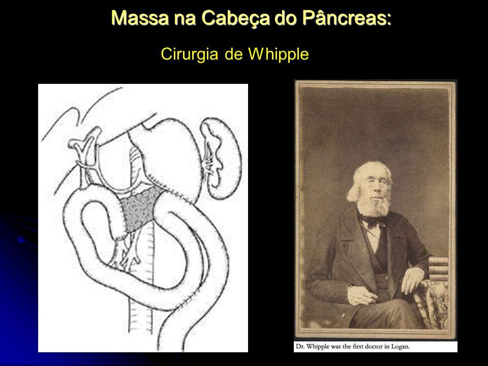 Massa na Cabeça do Pâncreas: Cirurgia de Whipple