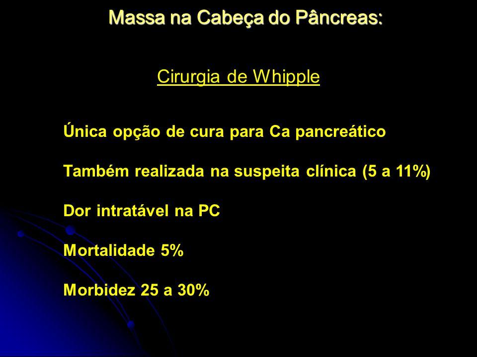 Massa na Cabeça do Pâncreas: Cirurgia de Whipple Única opção de cura para Ca pancreático Também realizada na suspeita clínica (5 a 11%) Dor intratável