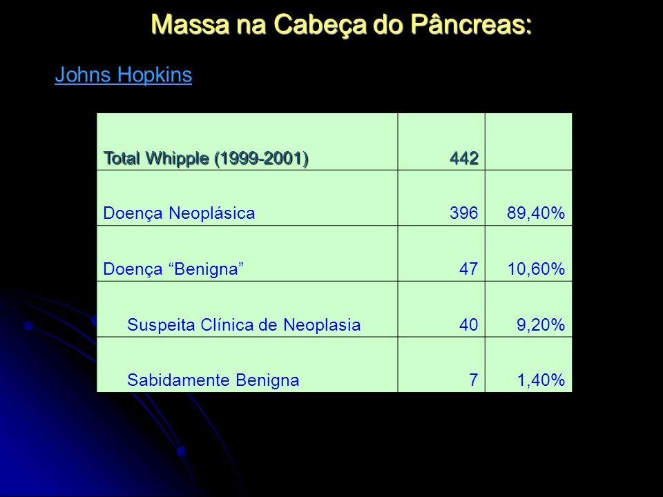 Massa na Cabeça do Pâncreas: Total Whipple (1999-2001) 442 Doença Neoplásica39689,40% Doença Benigna4710,60% Suspeita Clínica de Neoplasia409,20% Sabi