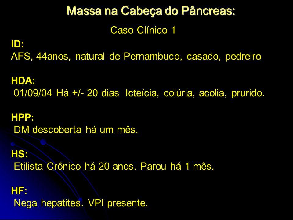 Massa na Cabeça do Pâncreas: Caso Clínico 1 ID: AFS, 44anos, natural de Pernambuco, casado, pedreiro HDA: 01/09/04 Há +/- 20 dias Icteícia, colúria, a