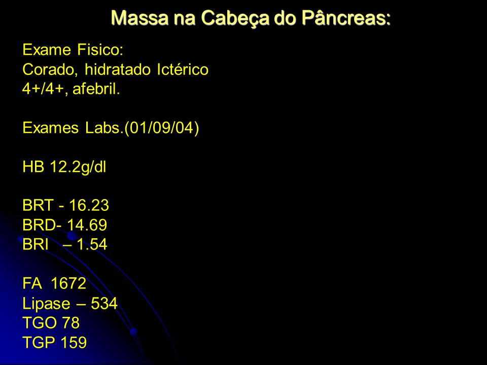 Massa na Cabeça do Pâncreas: Exame Fisico: Corado, hidratado Ictérico 4+/4+, afebril. Exames Labs.(01/09/04) HB 12.2g/dl BRT - 16.23 BRD- 14.69 BRI –