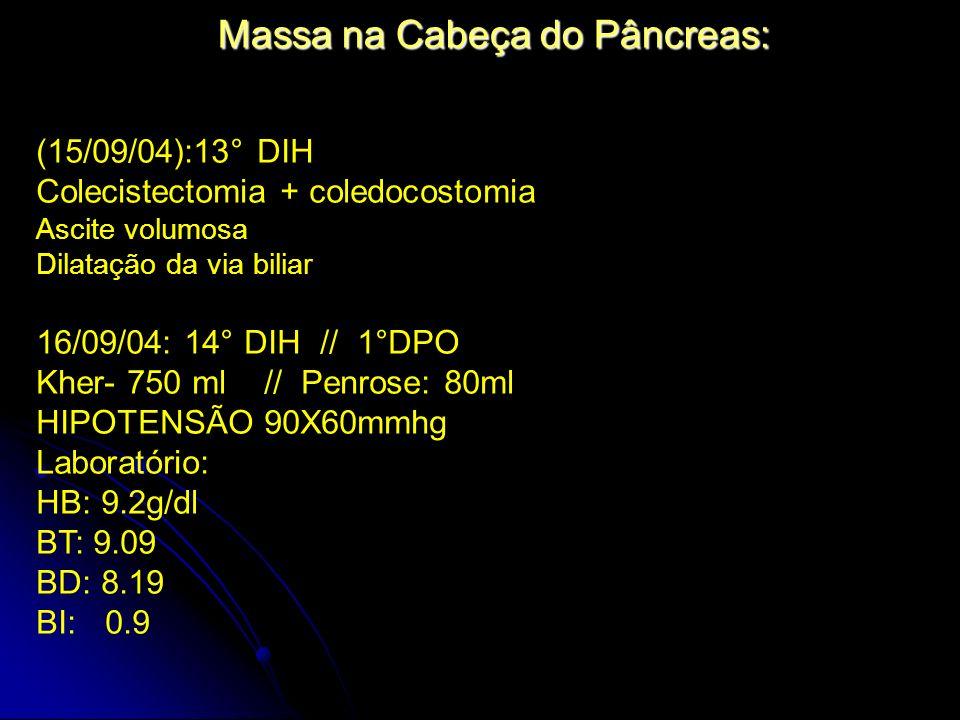Massa na Cabeça do Pâncreas: (15/09/04):13° DIH Colecistectomia + coledocostomia Ascite volumosa Dilatação da via biliar 16/09/04: 14° DIH // 1°DPO Kh