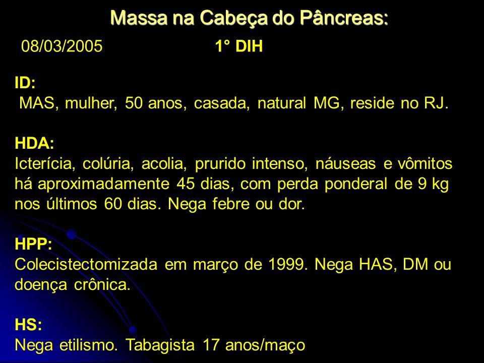 Massa na Cabeça do Pâncreas: ID: MAS, mulher, 50 anos, casada, natural MG, reside no RJ. HDA: Icterícia, colúria, acolia, prurido intenso, náuseas e v