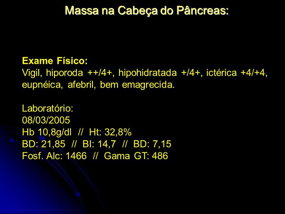 Massa na Cabeça do Pâncreas: Exame Físico: Vigil, hiporoda ++/4+, hipohidratada +/4+, ictérica +4/+4, eupnéica, afebril, bem emagrecida. Laboratório: