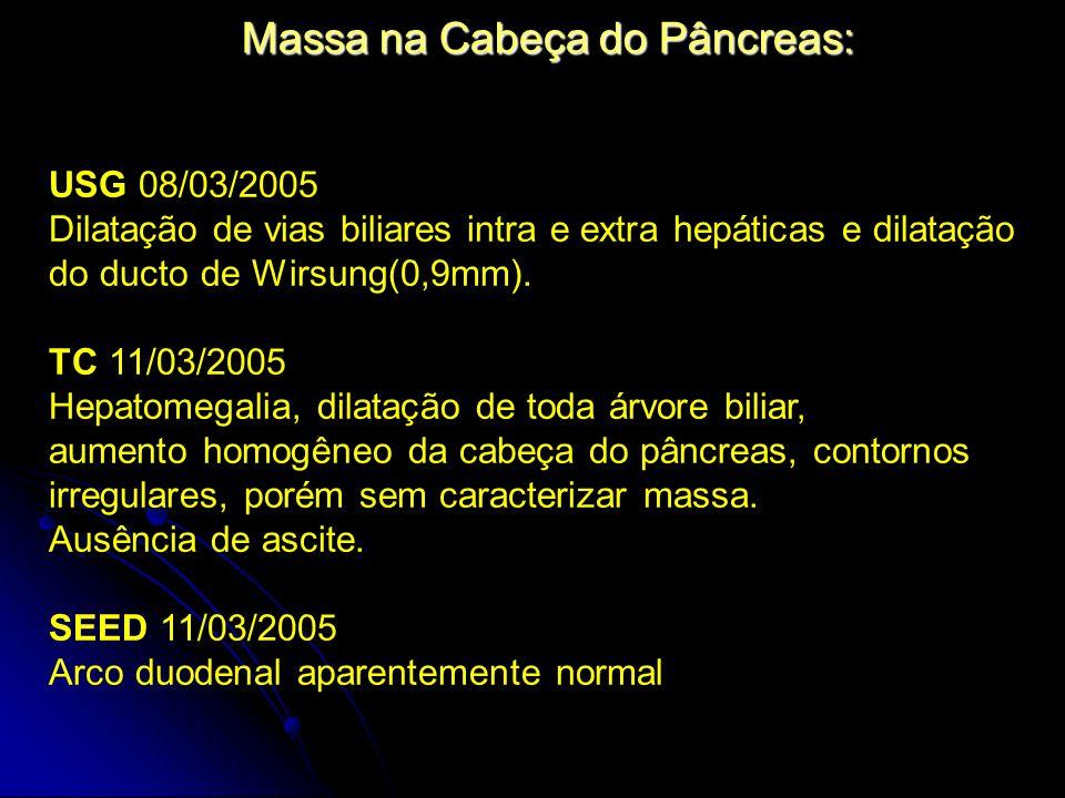 Massa na Cabeça do Pâncreas: USG 08/03/2005 Dilatação de vias biliares intra e extra hepáticas e dilatação do ducto de Wirsung(0,9mm). TC 11/03/2005 H