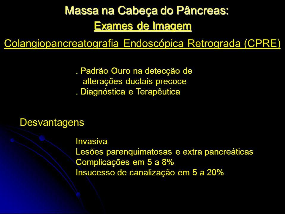 Exames de Imagem Massa na Cabeça do Pâncreas: Colangiopancreatografia Endoscópica Retrograda (CPRE). Padrão Ouro na detecção de alterações ductais pre