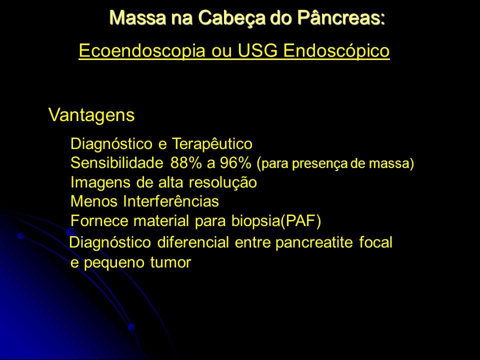 Massa na Cabeça do Pâncreas: Ecoendoscopia ou USG Endoscópico Vantagens Diagnóstico e Terapêutico Sensibilidade 88% a 96% ( para presença de massa) Im