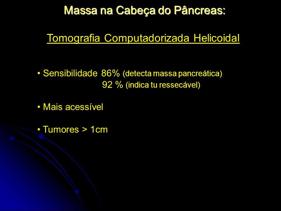 Massa na Cabeça do Pâncreas: Tomografia Computadorizada Helicoidal Sensibilidade 86% (detecta massa pancreática) 92 % (indica tu ressecável) Mais aces