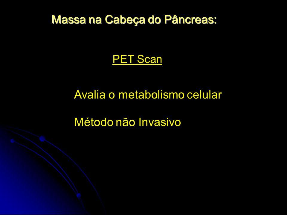 Massa na Cabeça do Pâncreas: PET Scan Avalia o metabolismo celular Método não Invasivo