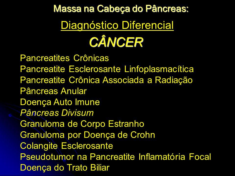 Diagnóstico Diferencial CÂNCER Pancreatites Crônicas Pancreatite Esclerosante Linfoplasmacítica Pancreatite Crônica Associada a Radiação Pâncreas Anul