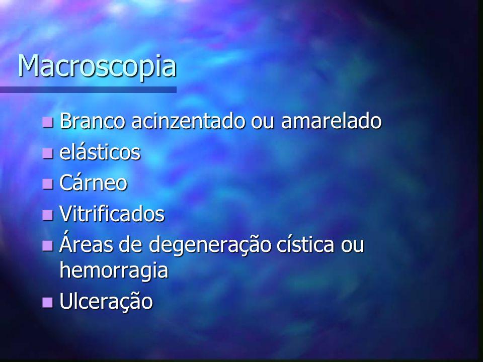 Macroscopia Branco acinzentado ou amarelado Branco acinzentado ou amarelado elásticos elásticos Cárneo Cárneo Vitrificados Vitrificados Áreas de degeneração cística ou hemorragia Áreas de degeneração cística ou hemorragia Ulceração Ulceração