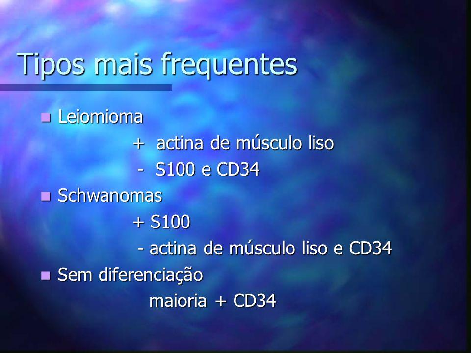Tipos mais frequentes Leiomioma Leiomioma + actina de músculo liso + actina de músculo liso - S100 e CD34 - S100 e CD34 Schwanomas Schwanomas + S100 + S100 - actina de músculo liso e CD34 - actina de músculo liso e CD34 Sem diferenciação Sem diferenciação maioria + CD34 maioria + CD34