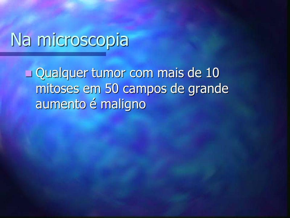 Na microscopia Qualquer tumor com mais de 10 mitoses em 50 campos de grande aumento é maligno Qualquer tumor com mais de 10 mitoses em 50 campos de grande aumento é maligno