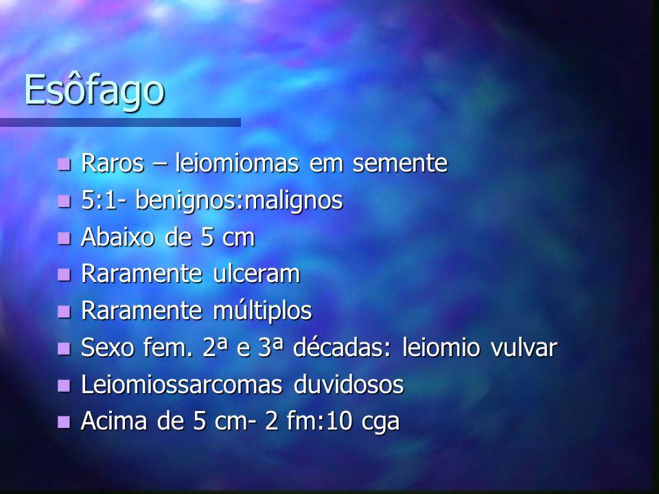 Esôfago Raros – leiomiomas em semente Raros – leiomiomas em semente 5:1- benignos:malignos 5:1- benignos:malignos Abaixo de 5 cm Abaixo de 5 cm Raramente ulceram Raramente ulceram Raramente múltiplos Raramente múltiplos Sexo fem.