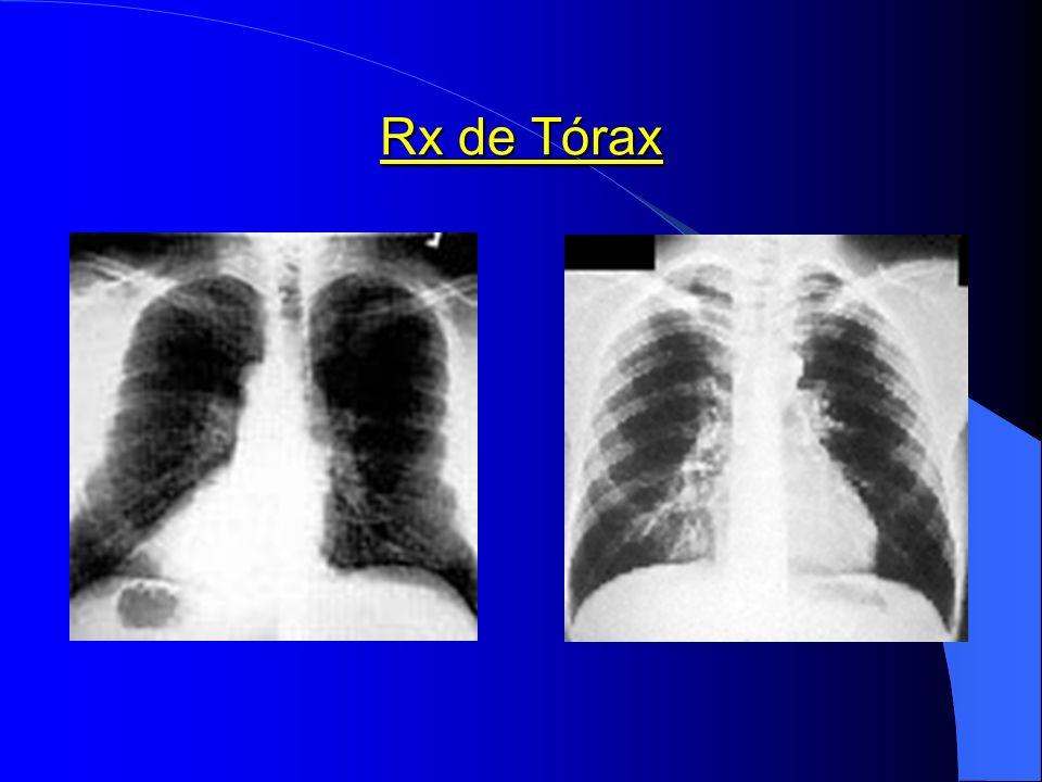 Rx de Tórax