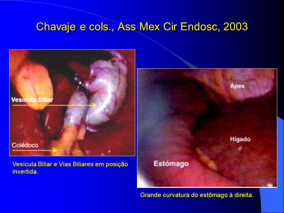 Chavaje e cols., Ass Mex Cir Endosc, 2003 Vesícula Biliar e Vias Biliares em posição invertida. Grande curvatura do estômago à direita.