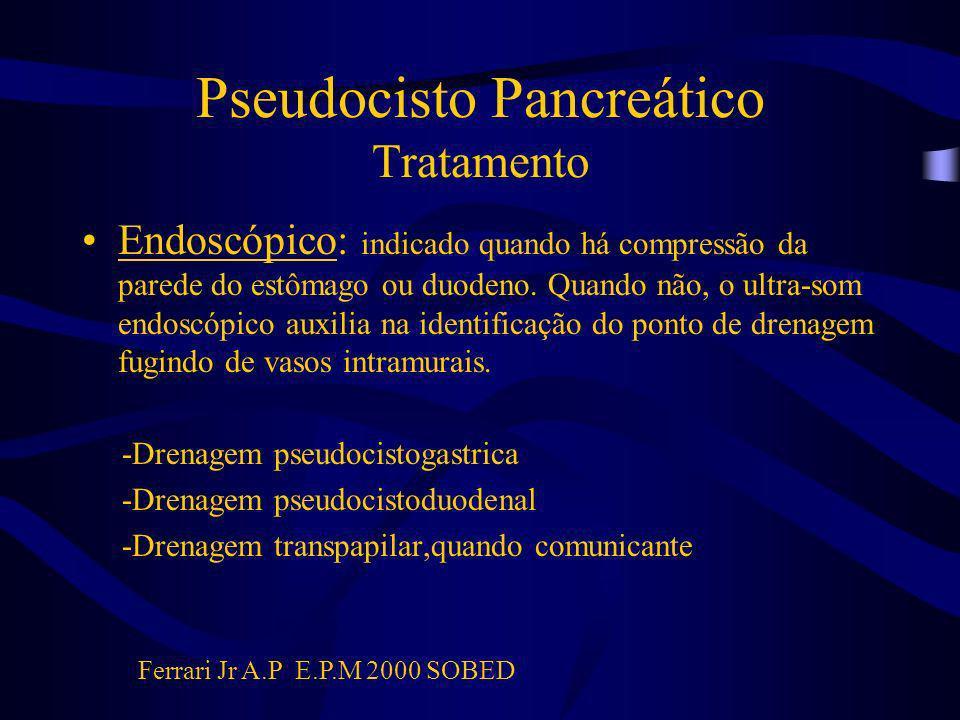 Pseudocisto Pancreático Tratamento Endoscópico: indicado quando há compressão da parede do estômago ou duodeno. Quando não, o ultra-som endoscópico au