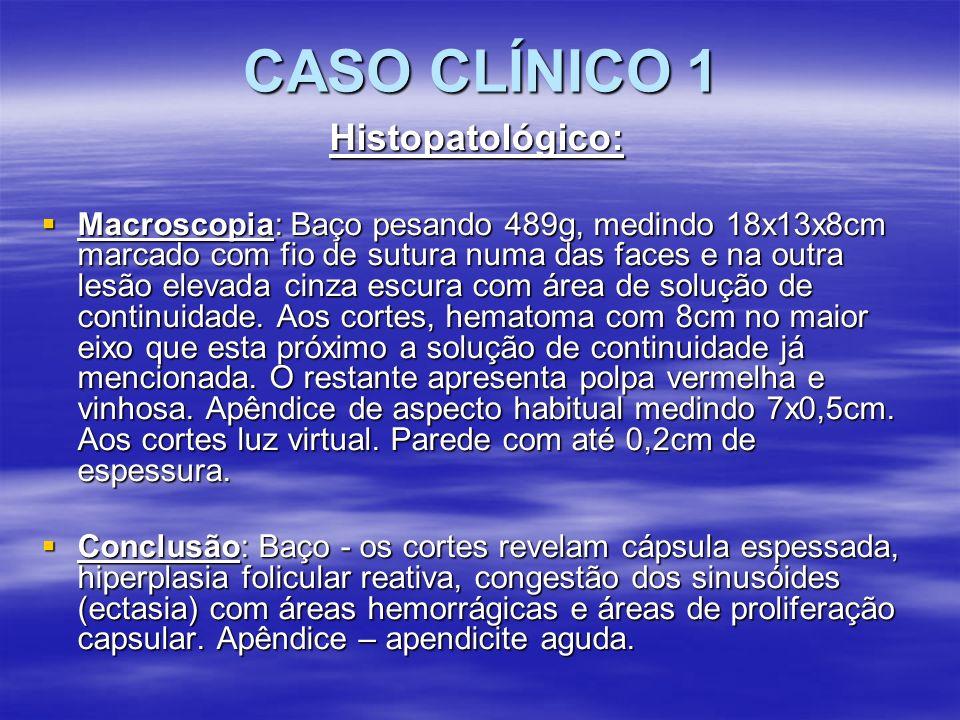 CASO CLÍNICO 1 Histopatológico: Macroscopia: Baço pesando 489g, medindo 18x13x8cm marcado com fio de sutura numa das faces e na outra lesão elevada ci