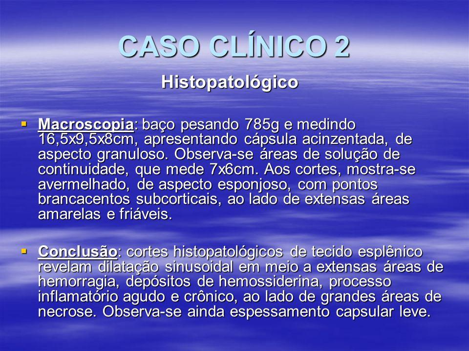 CASO CLÍNICO 2 Histopatológico Macroscopia: baço pesando 785g e medindo 16,5x9,5x8cm, apresentando cápsula acinzentada, de aspecto granuloso. Observa-