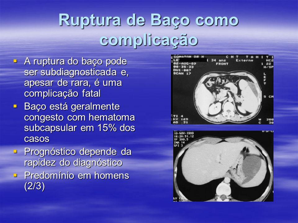 Ruptura de Baço como complicação A ruptura do baço pode ser subdiagnosticada e, apesar de rara, é uma complicação fatal A ruptura do baço pode ser sub