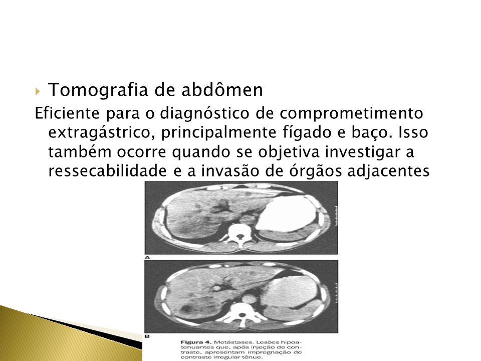 Tomografia de abdômen Eficiente para o diagnóstico de comprometimento extragástrico, principalmente fígado e baço. Isso também ocorre quando se objeti