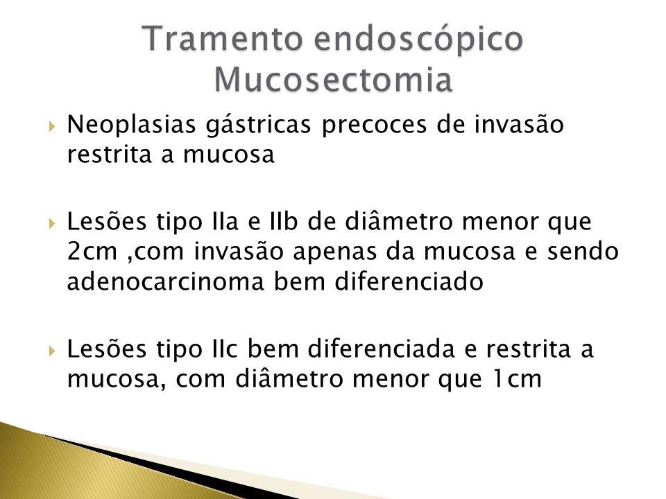 Neoplasias gástricas precoces de invasão restrita a mucosa Lesões tipo IIa e IIb de diâmetro menor que 2cm,com invasão apenas da mucosa e sendo adenoc