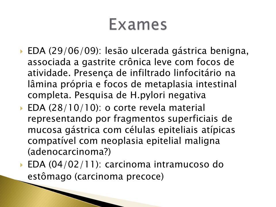 EDA (29/06/09): lesão ulcerada gástrica benigna, associada a gastrite crônica leve com focos de atividade. Presença de infiltrado linfocitário na lâmi