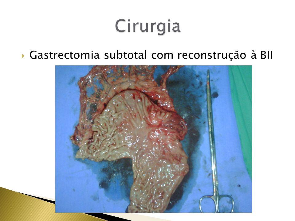 Gastrectomia subtotal com reconstrução à BII