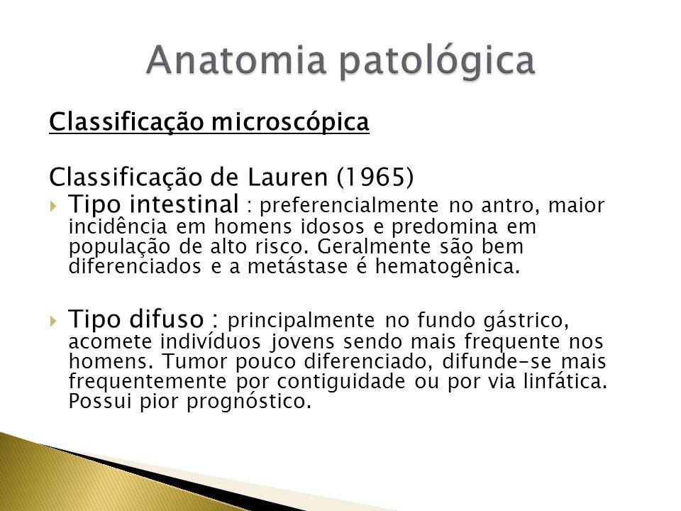 Classificação microscópica Classificação de Lauren (1965) Tipo intestinal : preferencialmente no antro, maior incidência em homens idosos e predomina