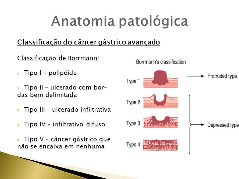 Classificação do câncer gástrico avançado Classificação de Borrmann: Tipo I – polipóide Tipo I – polipóide Tipo II – ulcerado com bor- Tipo II – ulcer