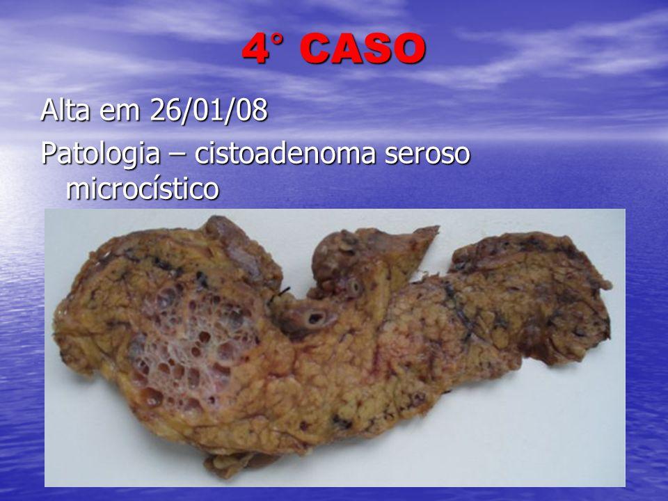 4° CASO Alta em 26/01/08 Patologia – cistoadenoma seroso microcístico