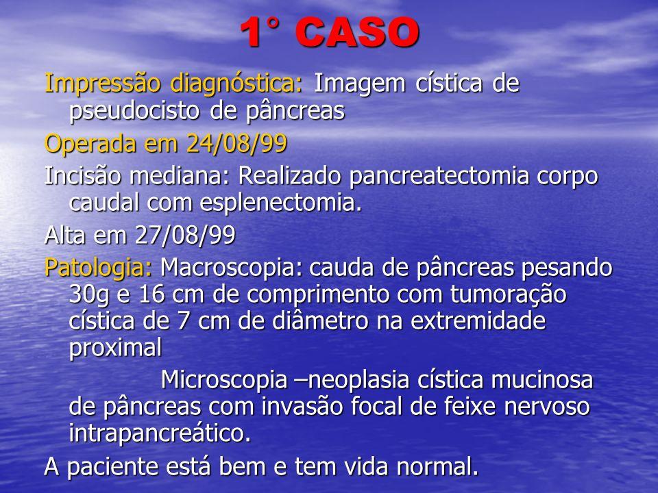 1° CASO Impressão diagnóstica: Imagem cística de pseudocisto de pâncreas Operada em 24/08/99 Incisão mediana: Realizado pancreatectomia corpo caudal c