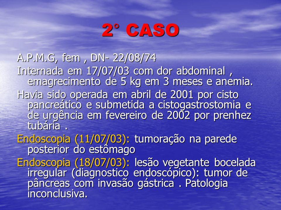 2° CASO A.P.M.G, fem, DN- 22/08/74 Internada em 17/07/03 com dor abdominal, emagrecimento de 5 kg em 3 meses e anemia. Havia sido operada em abril de