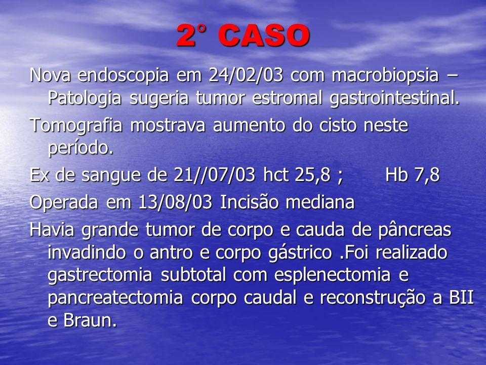 2° CASO Nova endoscopia em 24/02/03 com macrobiopsia – Patologia sugeria tumor estromal gastrointestinal. Tomografia mostrava aumento do cisto neste p