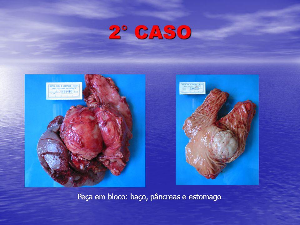 2° CASO Peça em bloco: baço, pâncreas e estomago