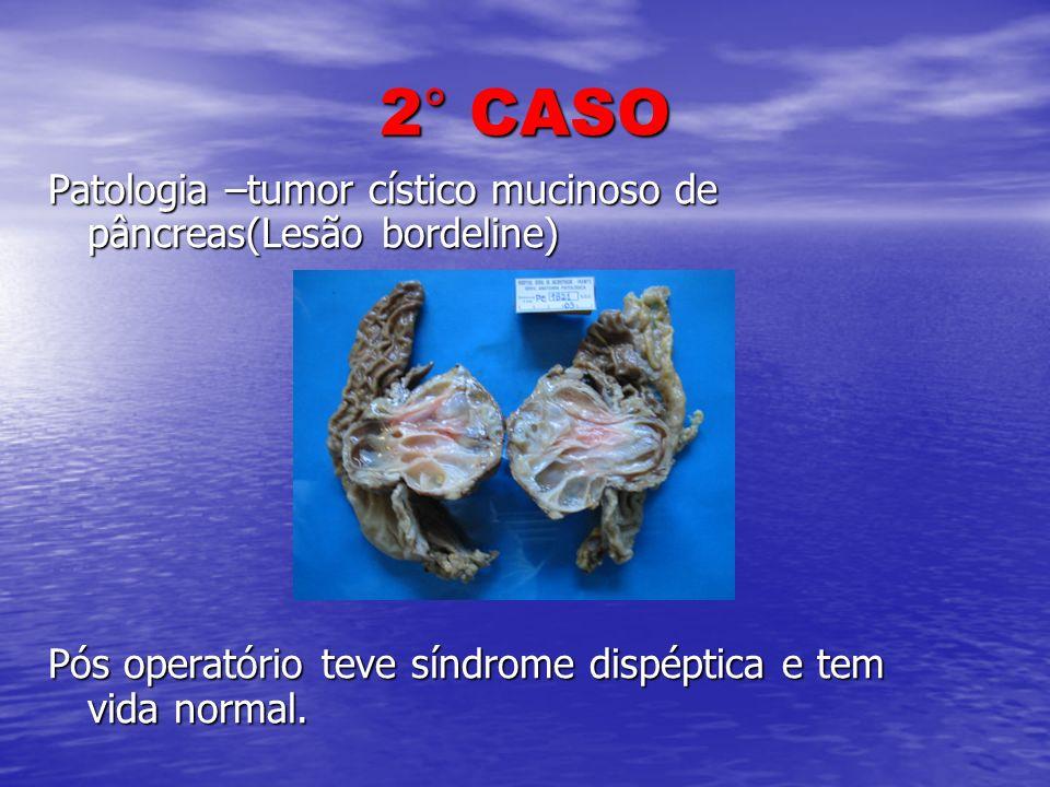 2° CASO Patologia –tumor cístico mucinoso de pâncreas(Lesão bordeline) Pós operatório teve síndrome dispéptica e tem vida normal.