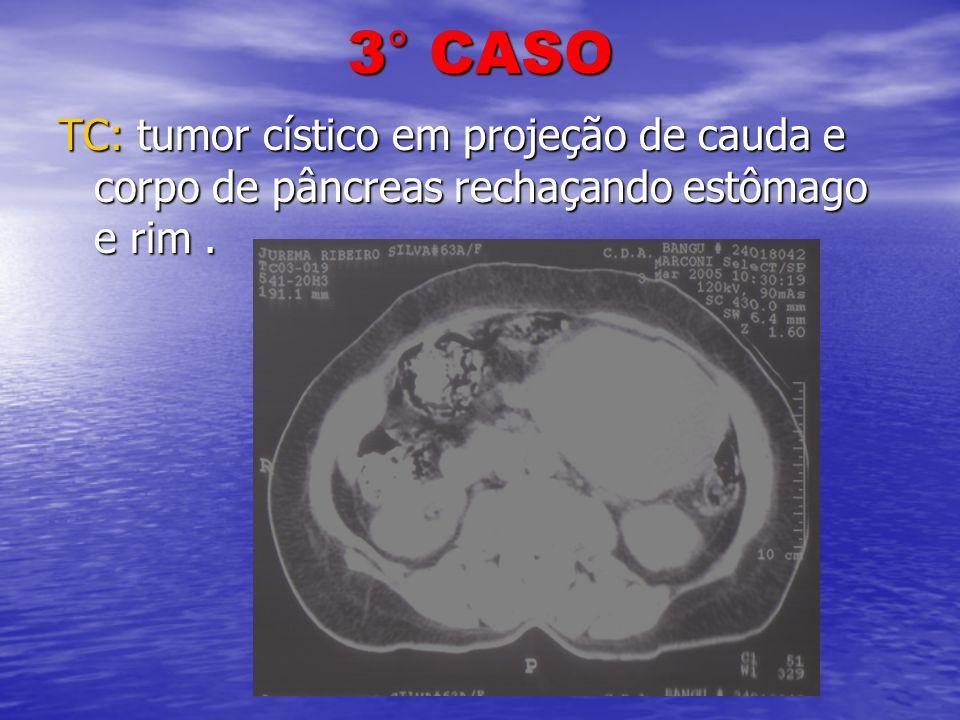 3° CASO TC: tumor cístico em projeção de cauda e corpo de pâncreas rechaçando estômago e rim.