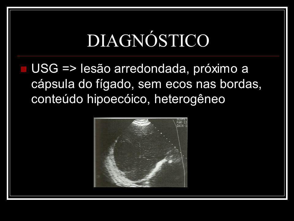 DIAGNÓSTICO USG => lesão arredondada, próximo a cápsula do fígado, sem ecos nas bordas, conteúdo hipoecóico, heterogêneo